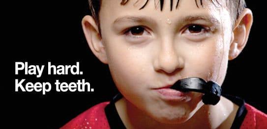 mouth-Gaurd2