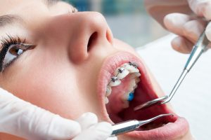 Braces and your dentist - Crystal Smiles - post-image