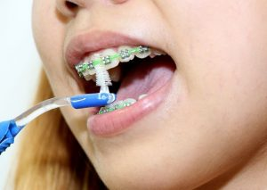 brushing with braces - Crystal Smiles - post-image
